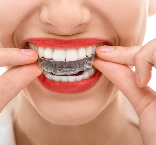 Invisalign El Paso Orthodontics - East El Paso Dentist