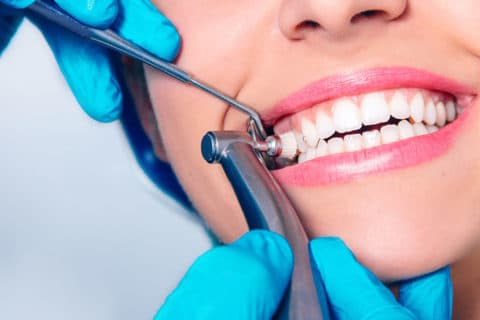 Dental Exam & Teeth Cleaning - East El Paso Dentist