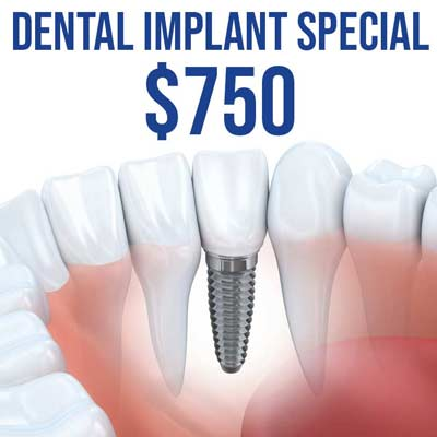 Affordable Dental Implants in El Paso, TX