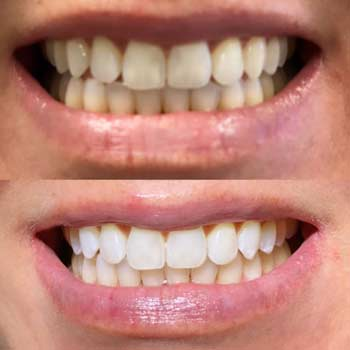 Before and after teeth whitening in El Paso, TX - Dentist El Paso, TX